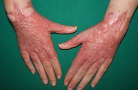 Comme blanchir la peau de la personne après le bronzage